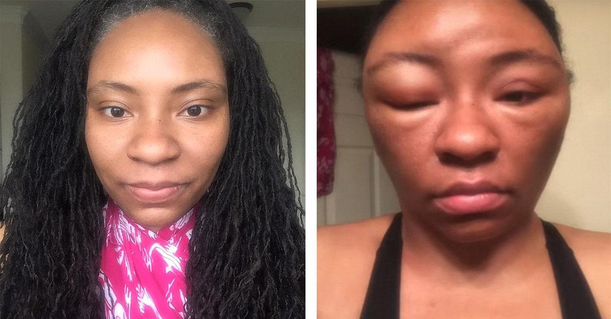 Woman Has Severe Allergic Reaction To Henna Hair Dye