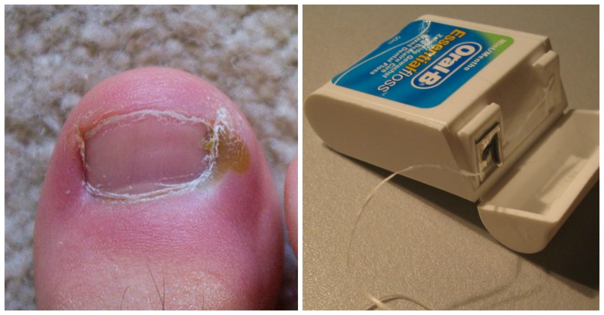 Treat Ingrown Toenails - Here\'s 6 Surprisingly Easy And Effective ...