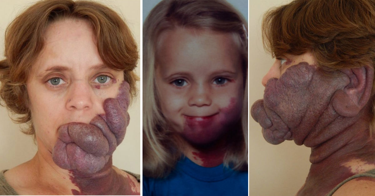 Image result for Bullies Called Her 'Purple People Eater' Because Of Birthmark But Her Transformation Is Amazing