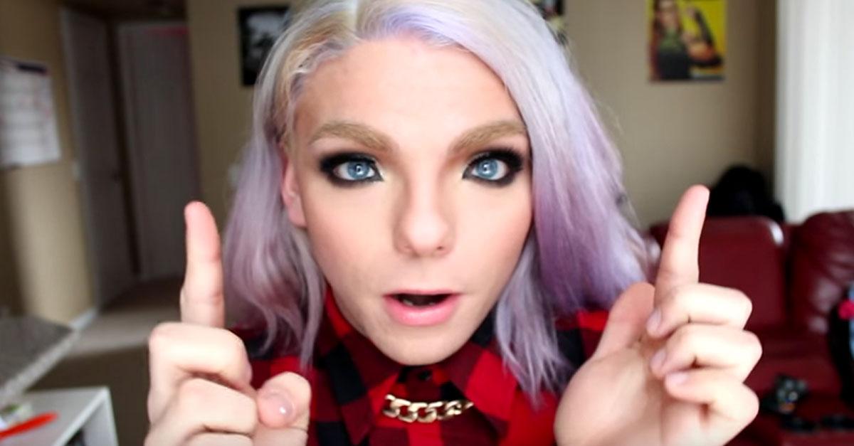 Waardenburg Syndrome This YouTube Star Has ...